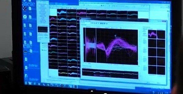 Neurobridge technology Ohio State Wexner Medical Center Battelle paralysis quadriplegic electrode stimulation movement EDIWeekly