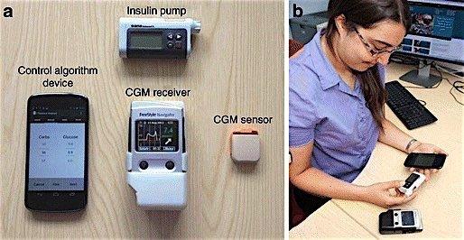 Cambridge Universtiy artificial pancreas insulin pump diabetes EDIWeekly