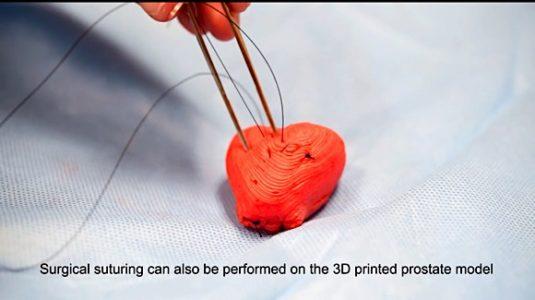 3d print organs 5 560