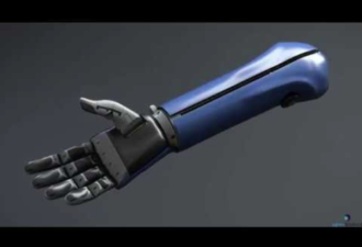 Bionic Arms Make Kids Feel Like Superheroes